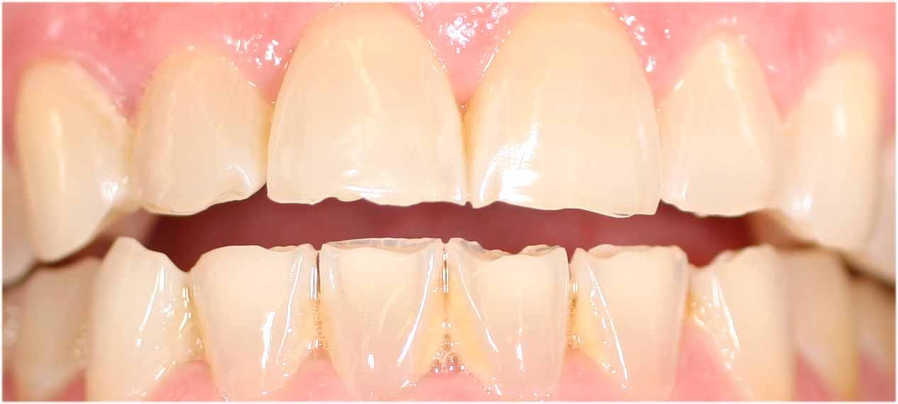 Resultado de imagen de desgastes en los dientes